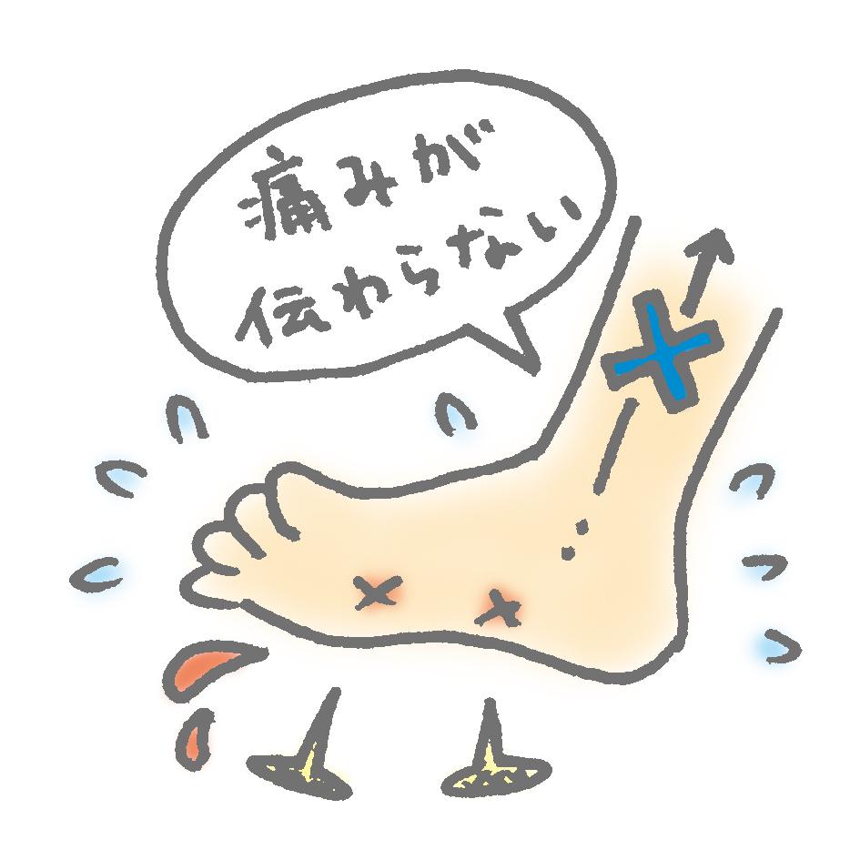足がしびれて痛みが伝わらない