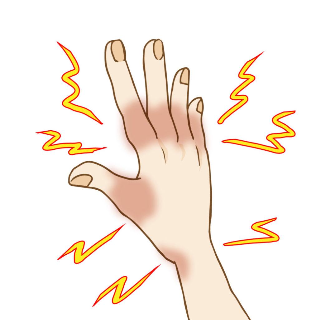 しびれた手