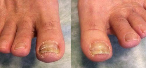 巻き爪矯正を受けて綺麗になった爪