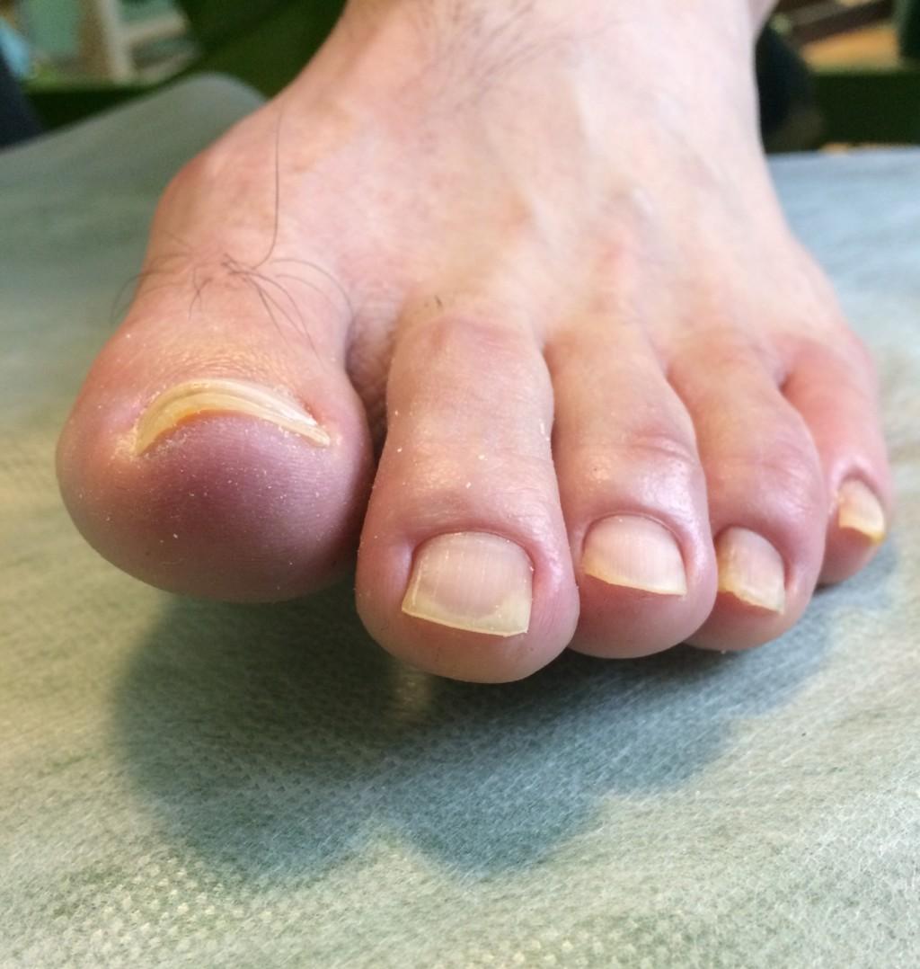 巻き爪矯正をして綺麗になった2か月後の爪